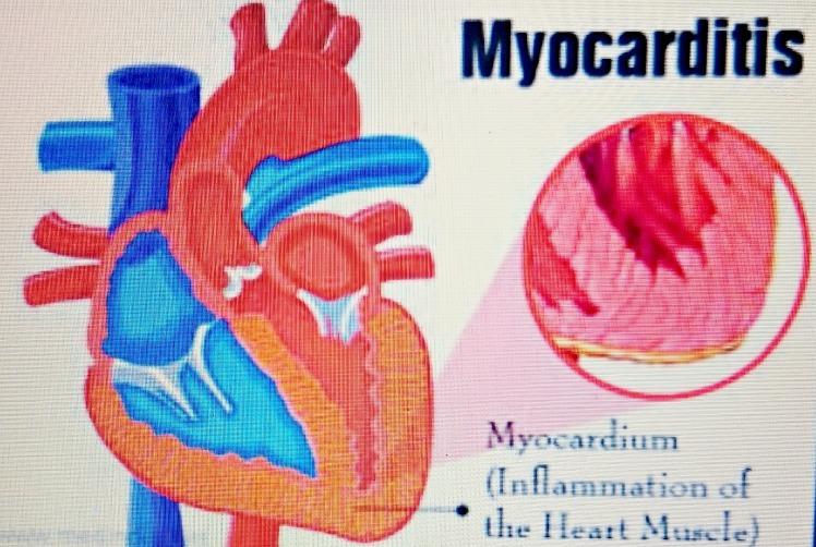 Myocarditis.JPG
